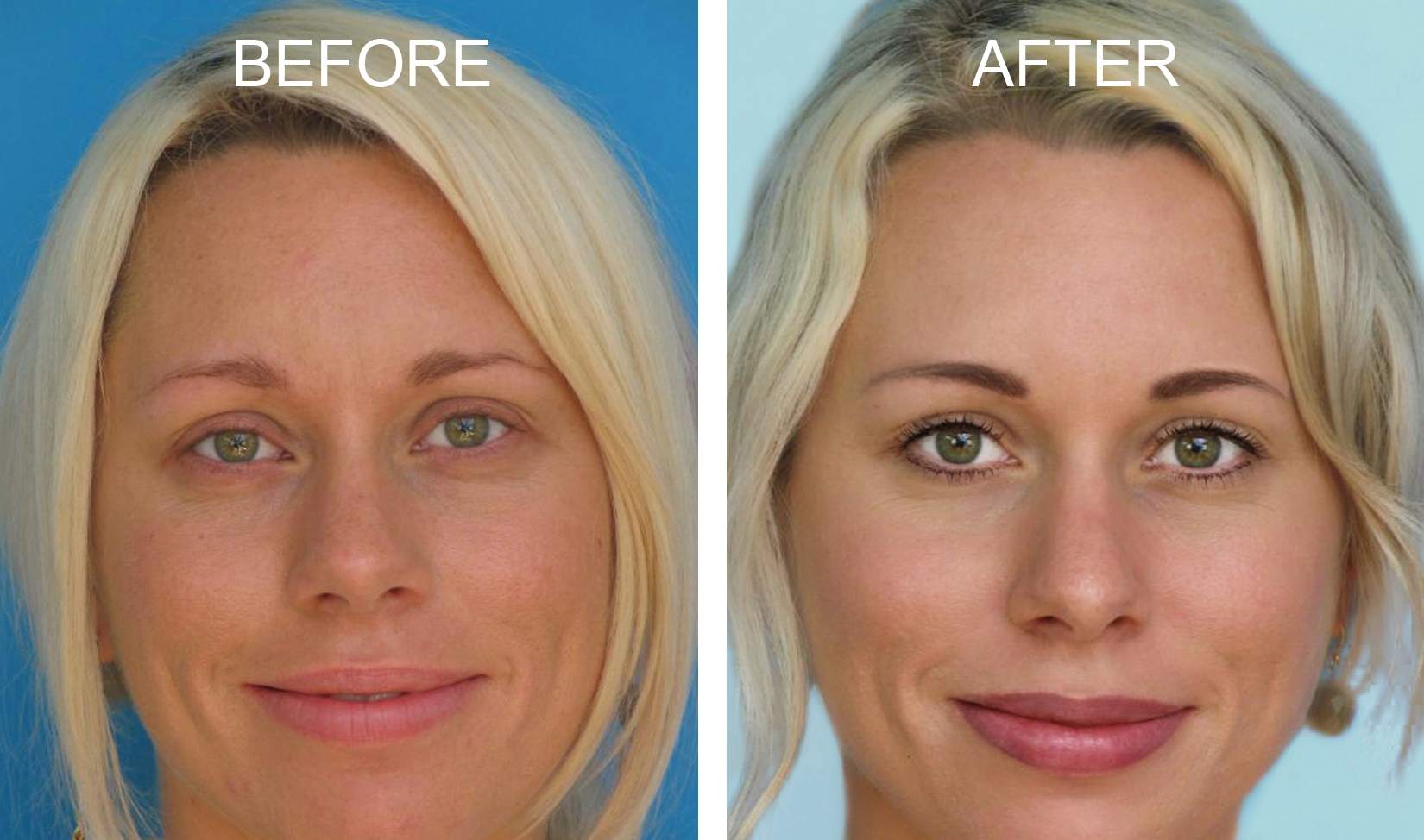 Permanent Makeup Under Eye Concealer